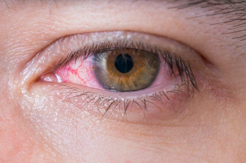 Conjuntivite infecciosa: causas, sintomas e tratamentos