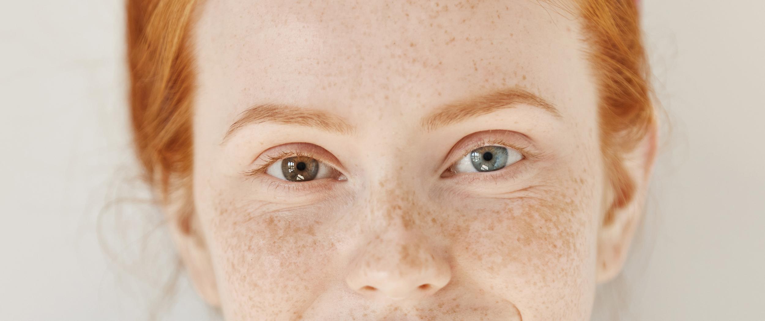 Mulher jovem, ruiva, com olhos de cores diferentes - heterocromia