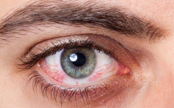 Ceratite herpética: diagnóstico e tratamento