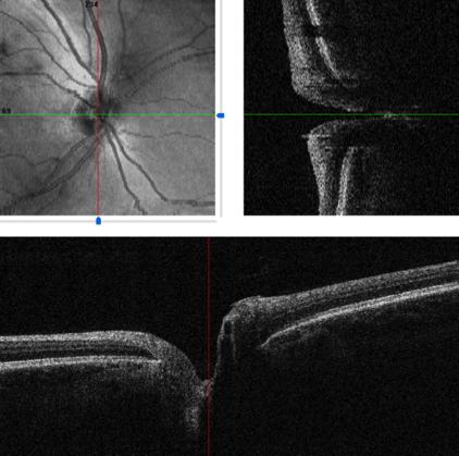 Exame de Glaucoma