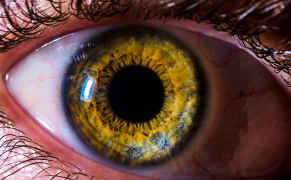 Glaucoma pigmentário
