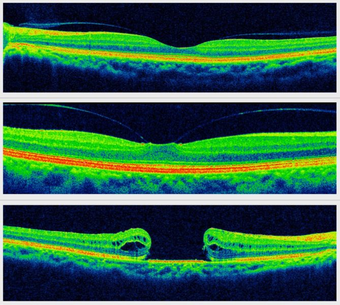 As imagens de OCT mostram a membrana posterior do vítreo aderida à fóvea, causando tração. Com o passar do tempo, ocorre a formação do buraco macular. Fonte: Wikipedia.