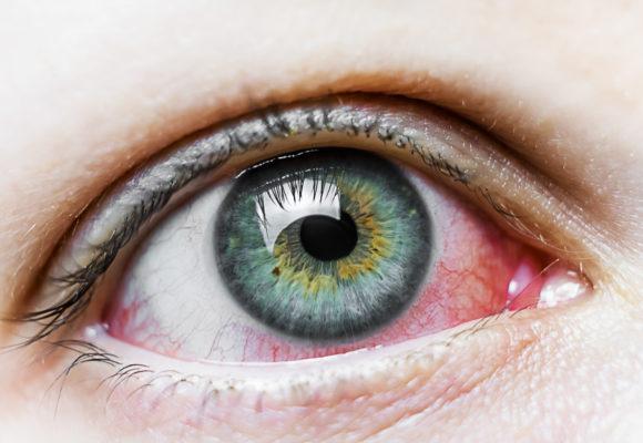 Ceratite herpética: o que você precisa saber