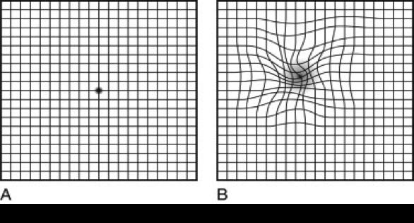 Figura de um exame de membrana epirretiniana por meio de grid