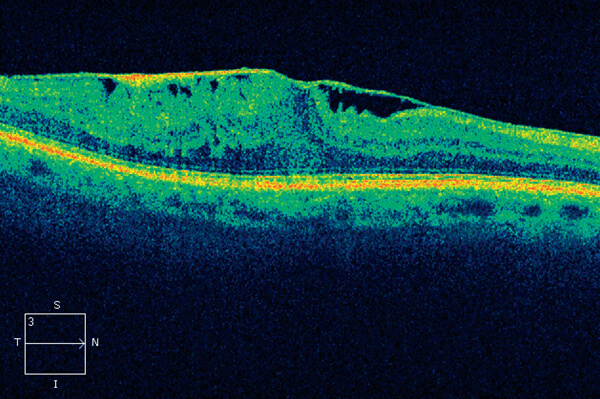 O OCT na membrana epirretiniana mostra uma camada anormal na superfície da retina associada com aumento da sua espessura.
