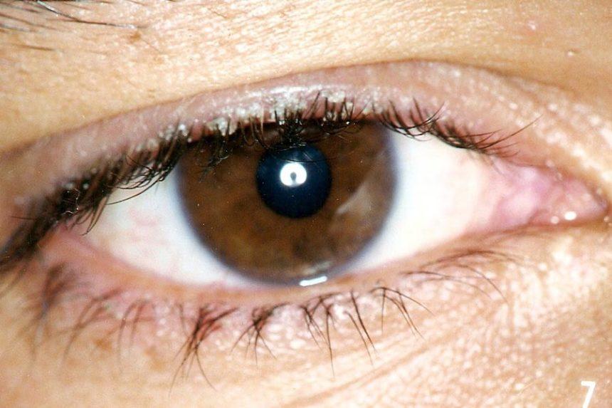 Blefarite: o que é, sintomas e tratamentos
