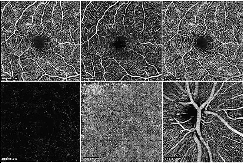 Tomografia de coerência óptica (OCT)