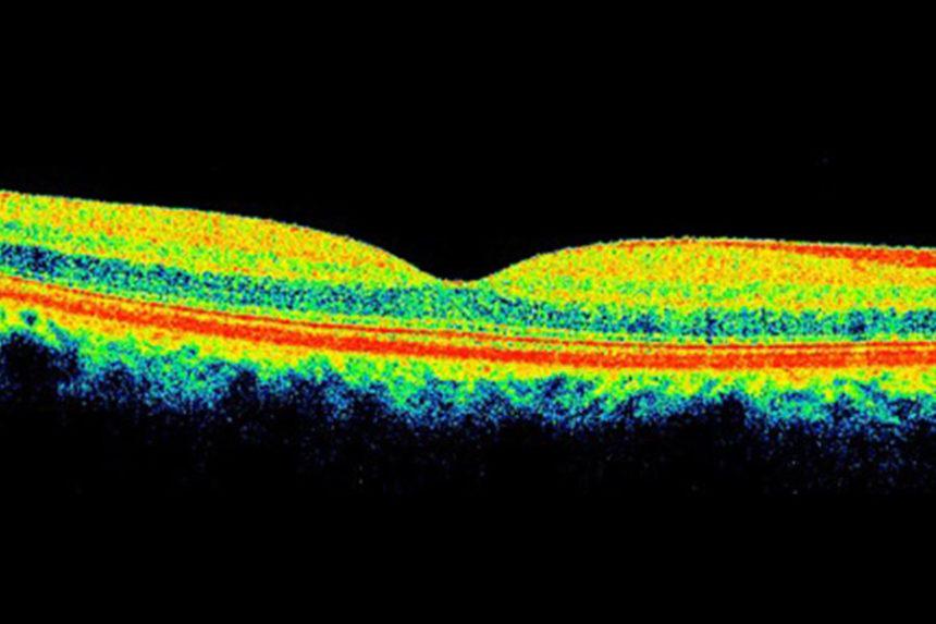 Tomografia de coerência óptica (OCT): uma tecnologia a favor da visão