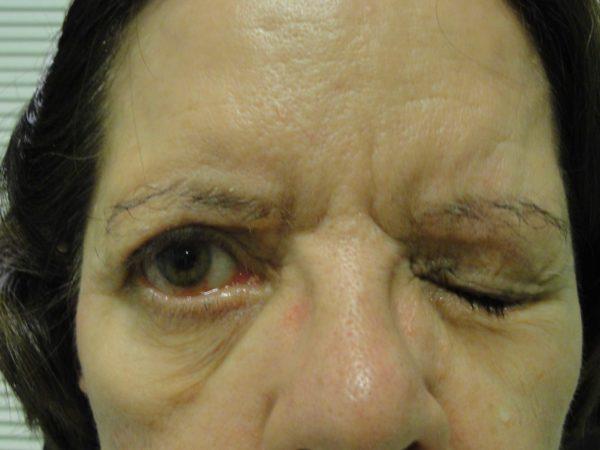 Mulher com paralisia facial. Um olho fechado e o outro aberto