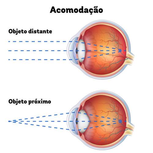 Figura mostrando um olho vendo uma objeto distante e outro vendo um objeto próximo. No que está vendo o objeto próximo o cristalino modifica seu tamanho o que é chamado de acomodação.