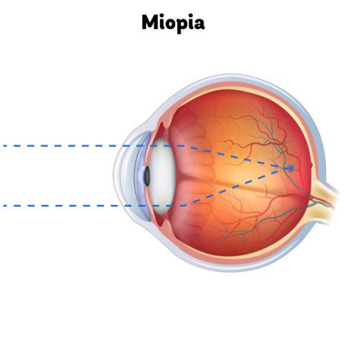 Olho com miopia focado em um objeto ao longe. Ponto focal à frente da retina e objeto parece embaçado.
