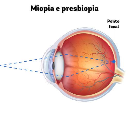 Olho com miopia (3D) focado em um objeto próximo (30 cm). Ponto focal sobre a fóvea e visão nítida.